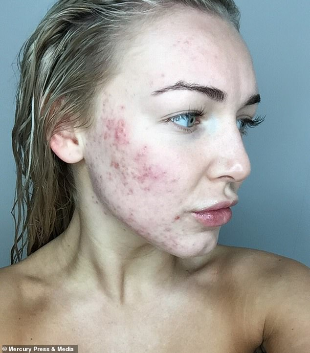 Roaccutane spin haiget Miks olaliigese valus