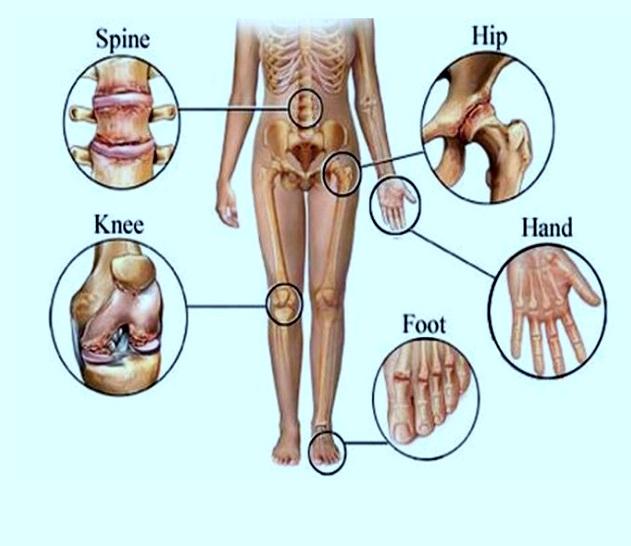 Fusio ravi arthroosi Kostoprav-i liigeste ravi