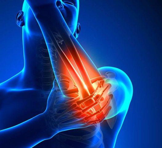 Folk meditsiin liigeste artriidi artriidi Hellic valu