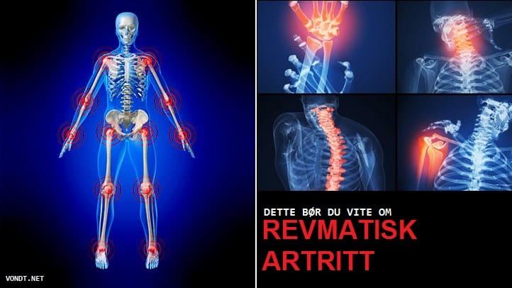 nii et artriiti ei olnud Ladina ola liigeste artroos