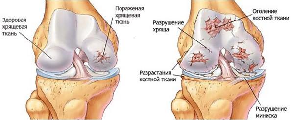 Valamine vedeliku liigeste ravi Esemid Justovi lahedal