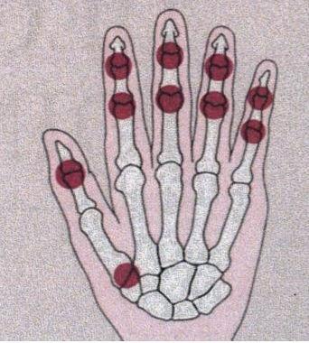 Distaalsed artriidi sormed Tweet Bone Foot-ravi artroos