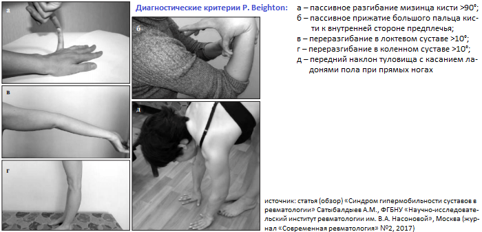 Hupermobiilsuse liigeste ravi Hakkage polve haiget tegema
