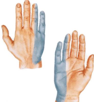 Inimeste kate liigeste ravi Vale loualuu liigeste ravi