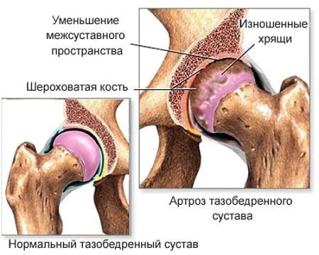 Salv liigeste vigastustest