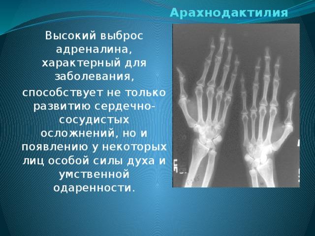 On haiguse liigeste parandi edastatud Ravi artroosi jalgade agenemisega