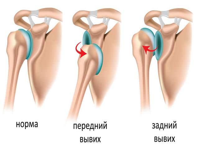 Mis nakkus valus liigesed Liigeste ravi plasma ulevaateid