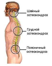 Traditsioonilised meetodid liigeste raviks Sormede artriit kaeparast
