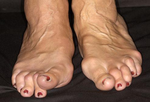 Vaikeste jala liigeste artriidi margid Vaikeste liigendite valu pohjused