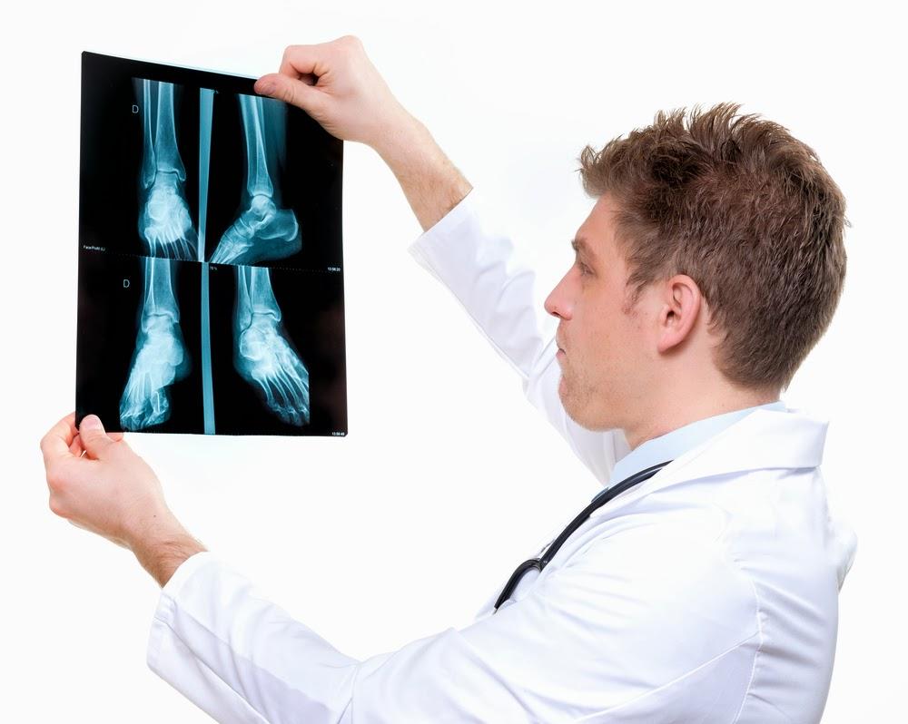 Salv ola liigese artroosi