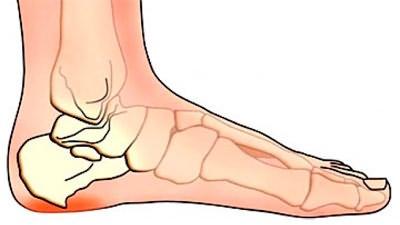 Foot ravi vaikeste luude artroos